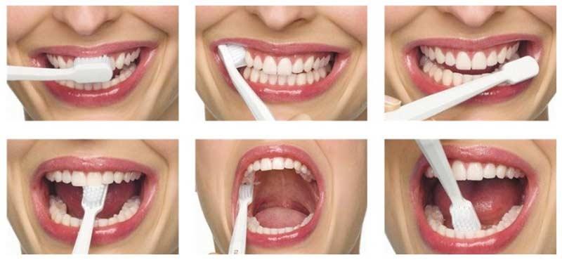 kako se zubi peru