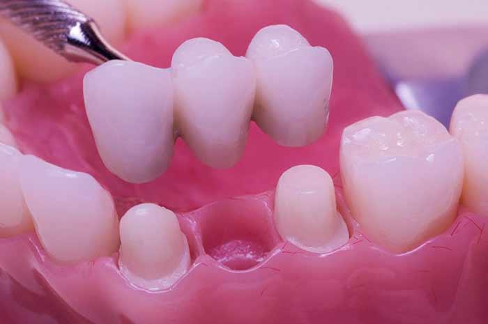 zubni most cena